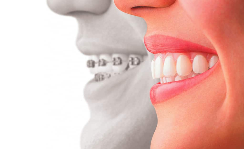 invisalign clinic singapore