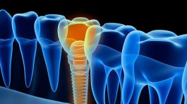 Dental Implants How They Can Benefit You