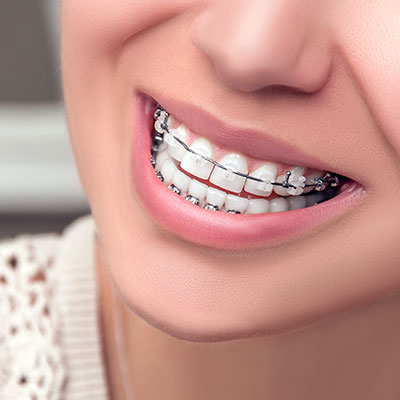 Orthodontics North York